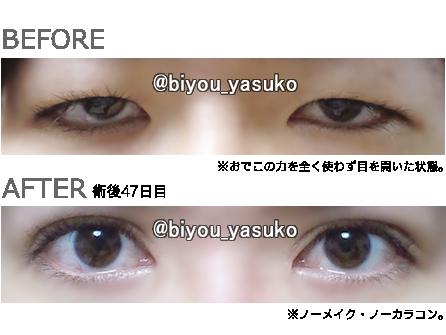 yasukoの眼瞼下垂ブログ・体験記